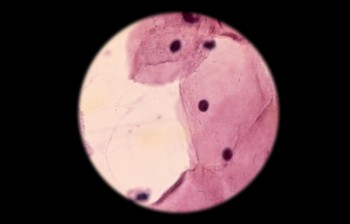 A cytologic smear under microscope